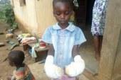 Une femme brûle les mains de son enfant pour vol de cinq cent francs